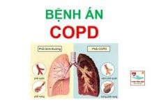 Bệnh án bệnh phổi tắc nghẽn mãn tính (COPD)