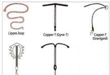 các loại dụng cụ tử cung