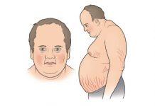 Hội chứng Cushing - Triệu chứng, Chẩn đoán và Điều trị