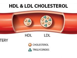 Rối Loạn Lipid Máu – Phác Đồ Bộ Y Tế, Rối loạn chuyển hóa lipid