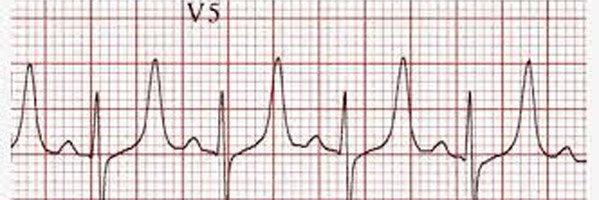 Sóng T cao nhọn trong tăng kali máu