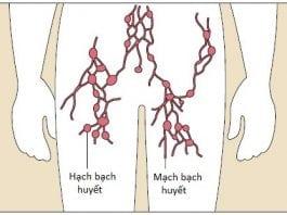 viêm mạch bạch huyết