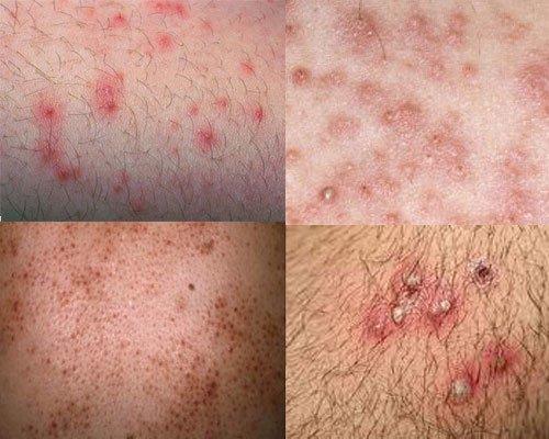 Viêm nang lông (Folliculitis)