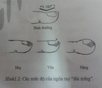 Các mức độ của ngón tay dùi trống (ngón tay Hippocrate)
