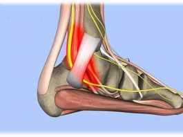 Hội chứng ống cổ chân (Tarsal tunnel syndrome)