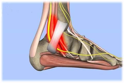 Hội chứng ổng cổ chân (Tarsal tunnel syndrome)