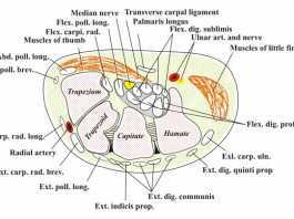 Hội chứng ống cổ tay (Carpal tunnel syndrome)