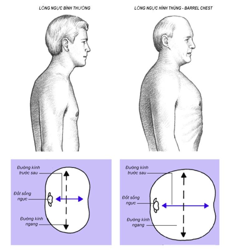 Lồng ngực hình thùng (Barrel Chest)