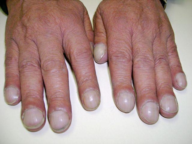 Ngón tay dùi trống (ngón tay Hippocrate)