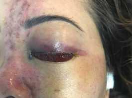 Tắc động mạch trên ổ mắt và động mạch trên ròng rọc sau tiêm filler vùng mặt