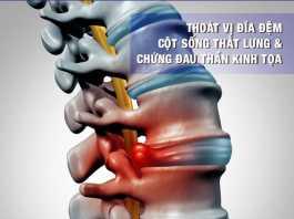 Thoát vị đĩa đệm cột sống thắt lưng và chứng đau thần kinh tọa