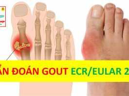 Tiêu chuẩn chẩn đoán bệnh Gout theo ACR/EULAR 2015
