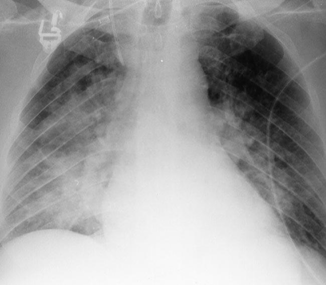 X quang ngực của 1 trường hợp viêm phổi hít