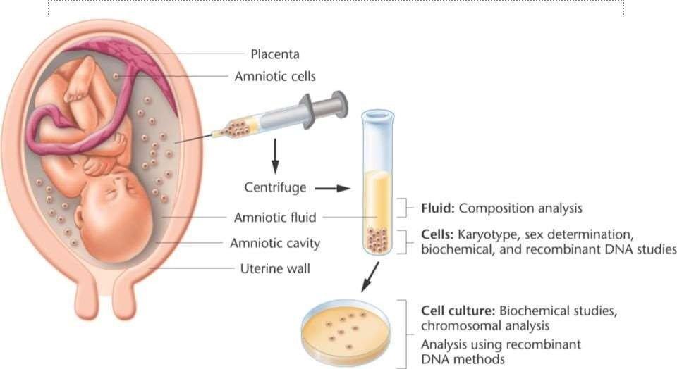 Các phương pháp chẩn đoán thai dị tật bẩm sinh