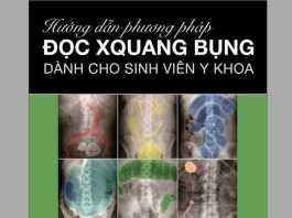 Abdominal X-Rays for Medical Students PDF Tiếng Việt - BS. Đỗ Tiến Sơn, Hướng dẫn phương pháp đọc X Quang bụng dành cho sinh viên y khoa