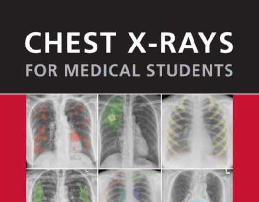 Chest X-Ray For Medical Students PDF Tiếng Việt - Sách Dịch