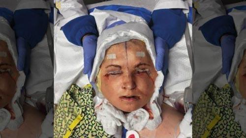 Đằng sau ca phẫu thuật ghép mặt lịch sử dài 31 giờ, Đầu của Katie được cố định sau 31 giờ phẫu thuật. Mắt cô cũng được dán băng dính để tránh tổn thương.