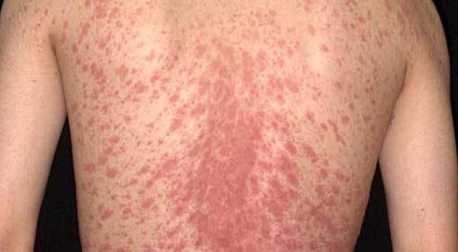 Hội chứng Lyell (Toxic Epidermal Necrolysis)