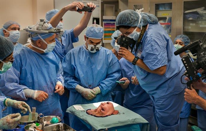 Đằng sau ca phẫu thuật ghép mặt lịch sử dài 31 giờ, Các bác sĩ mất 16 giờ để thực hiện công đoạn cắt phần mặt của người hiến tặng.
