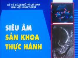 [PDF] Siêu âm Sản khoa thực hành - BV Hùng Vương