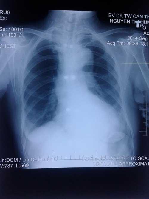 X-quang tim phổi thẳng