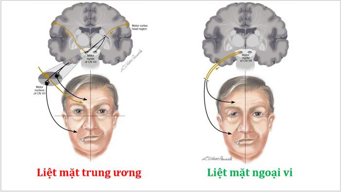 Phân biệt liệt dây thần kinh VII trung ương và liệt dây VII ngoại vi