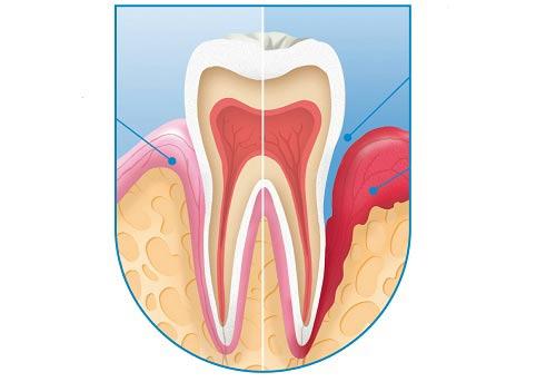 Phân biệt viêm quanh răng và viêm quanh cuống răng