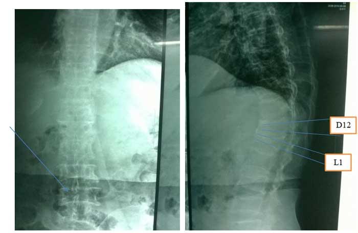 X-quang cột sống