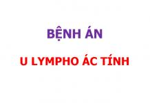 Bệnh án u lympho ác tính