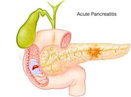 Chẩn đoán và điều trị Viêm Tụy Cấp