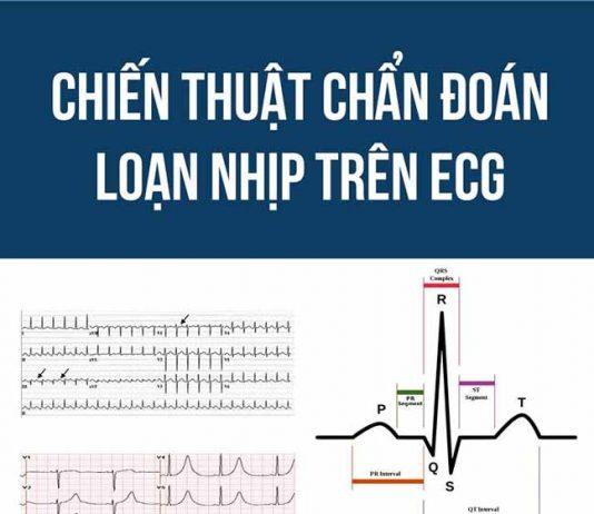[PDF] Chiến thuật chẩn đoán loạn nhịp trên ECG PDF