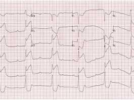 Cơ chế của block AV hoàn toàn trong nhồi máu cơ tim thành dưới?