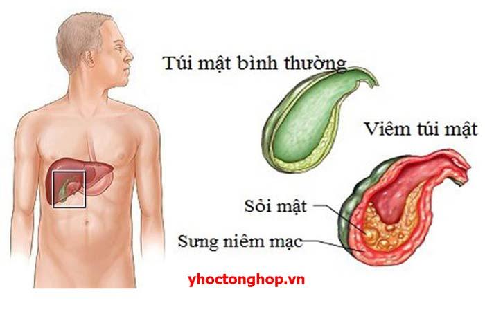 Viêm túi mật cấp: chẩn đoán, điều trị