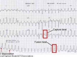 Tại sao phân ly AV không xảy ra ở tất cả các bệnh nhân có nhịp nhanh thất?